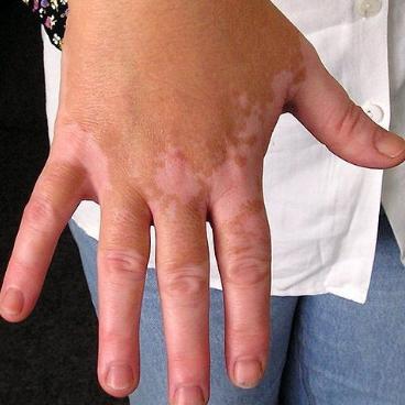 obat vitiligo